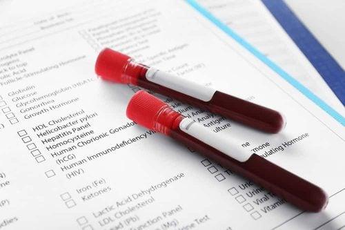Laboratory Services & Diagnostic Testing